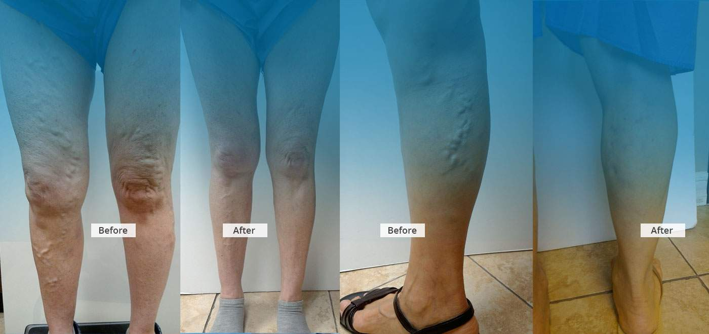 Varicose Vein Treatment - before and after Banner